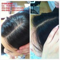 广州怎么能使白发变黑 二十五年的治疗白发