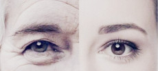 面部干細胞抗揍再生療法