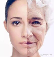 面部干細胞抗衰再生療法  桐儷時光干細胞