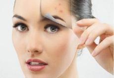面部干細胞抗皺再生療法  南寧桐儷時光