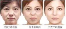 面部干細胞美容  南寧桐儷時光干細胞